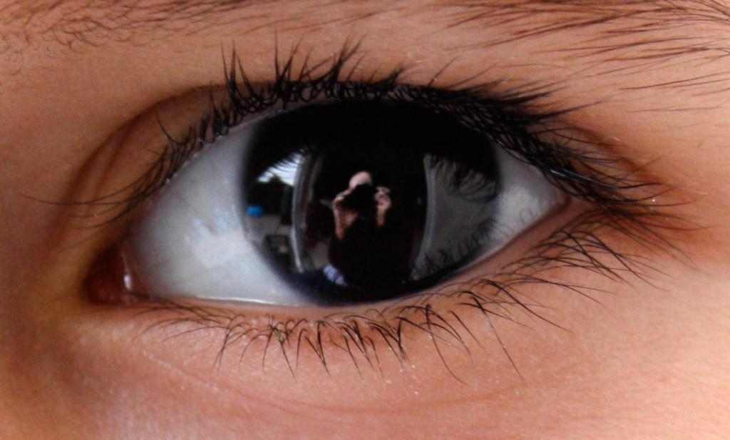 Penyakit Mata Ikan, Penyakit  Mata Merah, Penyakit Mata Belekan, Penyakit Mata Menular, Penyakit Mata  Silinder, Penyakit Mata Glaukoma, Penyakit Mata Kucing, Penyakit Mata  Belek, Penyakit Mata Katarak, Penyakit Mata Pada Bayi